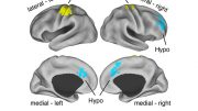 New Study Shows Brain Abnormalities Are Present Even Before Onset of Schizophrenia