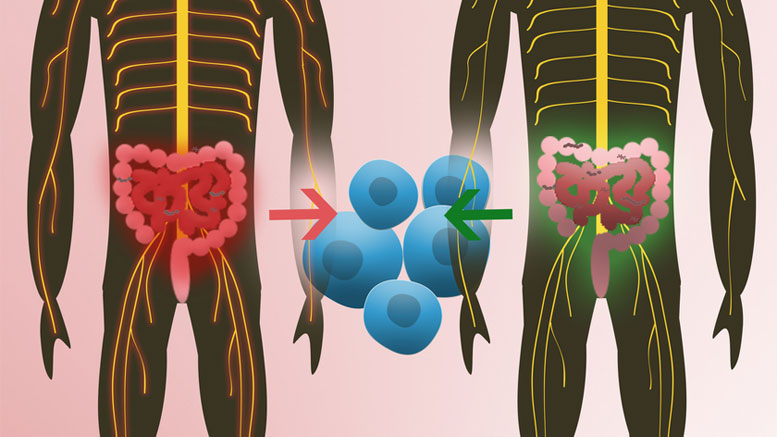 New Study Shows Human Intestinal Bacteria Can Trigger Multiple Sclerosis