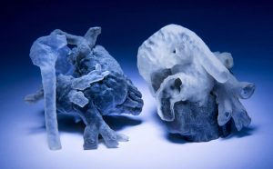 New System Can Convert MRI Scans into 3D-Printed Models