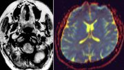 New algorithm can analyze information from medical images