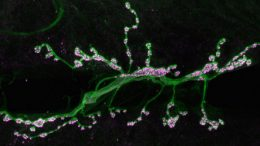 Newly Identified Mechanism Helps Strengthen Links between Neurons