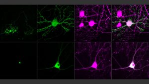 Next-Generation Optogenetics Control Single Neurons