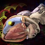 Non Inherited Mutations Account for Many Heart Defects