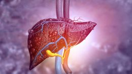 Nuclear Magnetic Resonance to Detect Fatty Liver Disease