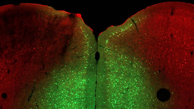 Ophn1 Gene and the Prelimbic Region of the Medial Prefrontal Cortex