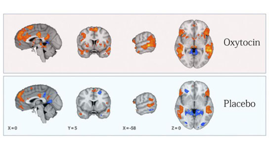 Way to increase brain capacity image 3