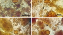 Parasite Eggs Found in Fecal Samples