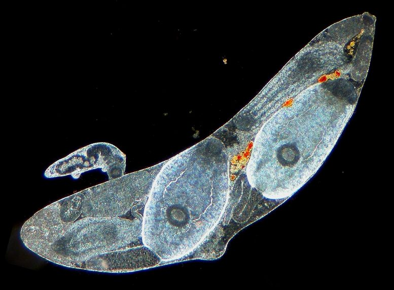 Parasitic Trematode Worms