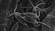 Pestalotiopsis-microspora-close