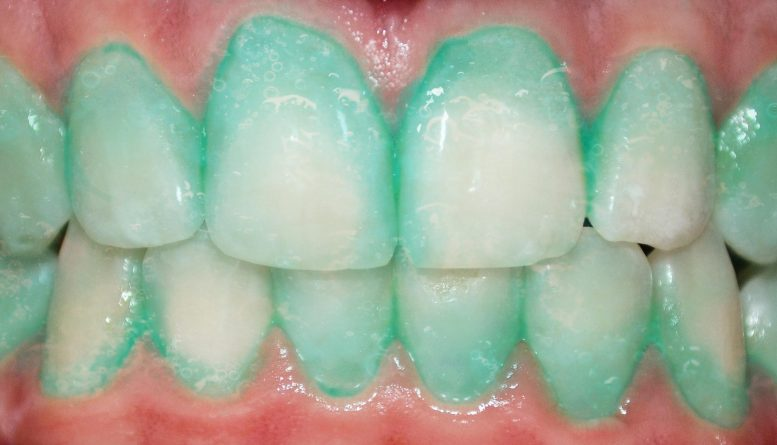 Could This Plaque Identifying Toothpaste Prevent a Heart Attack or Stroke?