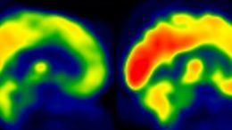 Representative Brain Glucose Metabolism Scan