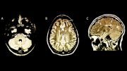 Researchers Discover MS Risk in Children Using MRI Brain Scans