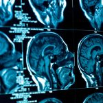 Researchers Discover Weakness in Glioblastoma Defenses