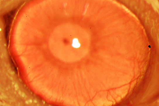 Researchers Discover a New Way to Regrow Human Corneas