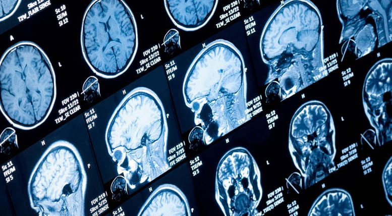 Researchers Identify Brainstem Changes in Parkinson's Disease