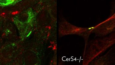 Researchers Identify Mechanism That Regulates Signaling Events Leading to Cell Migration and Metastasis