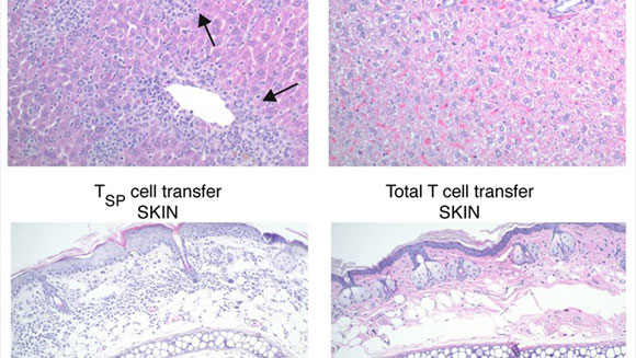 Researchers Identify New T cell Subsets with Potential to Improve Cellular Therapy for Cancer