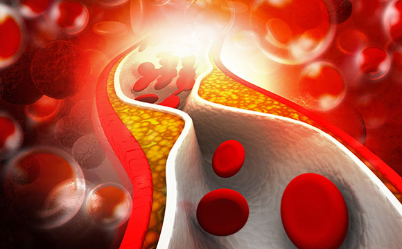 Researchers Identify Tiny RNA That Controls Cholesterol