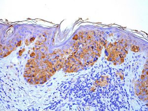Researchers Identify a New Treatment Target for Melanoma