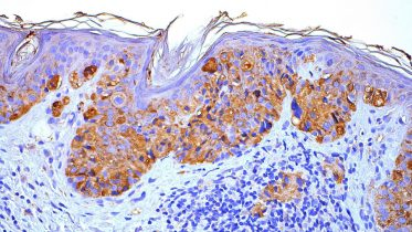 A New Therapeutic Target for the Treatment of Melanoma