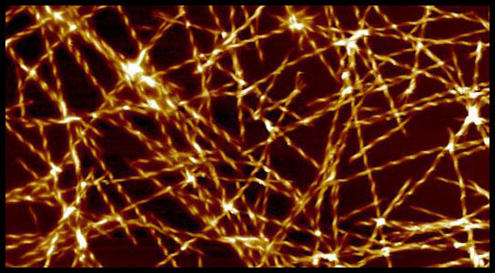 Researchers Pinpoint a Catalytic Trigger for the Onset of Alzheimers