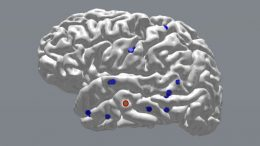 Researchers Prove That Precisely Timed Brain Stimulation Improves Memory