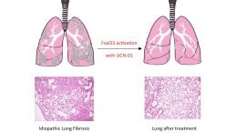 Researchers Reveal Cause of Pulmonary Fibrosis