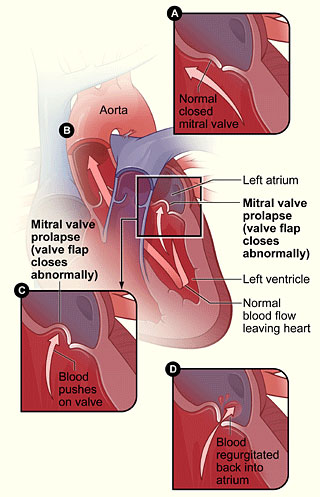Researchers Reveal Gene for Mitral Valve Prolapse