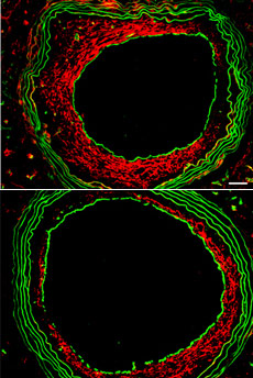 Researchers Reveal How Blood Vessels Keep Fit