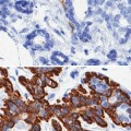 Researchers Uncover Cellular Basis for Age-related Breast Cancer Vulnerability