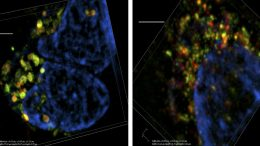 Researchers Uncover New Target To Stop Cancer