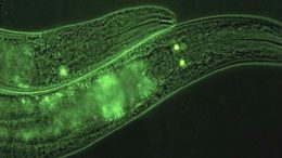 SKN-1B Tagged With GFP