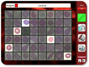 Sample malaria-diagnosis game screen