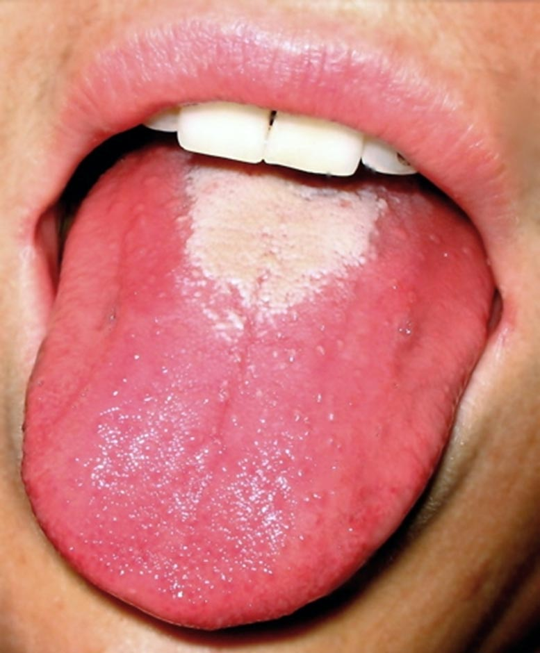 Scarlet Fever Strawberry Tongue