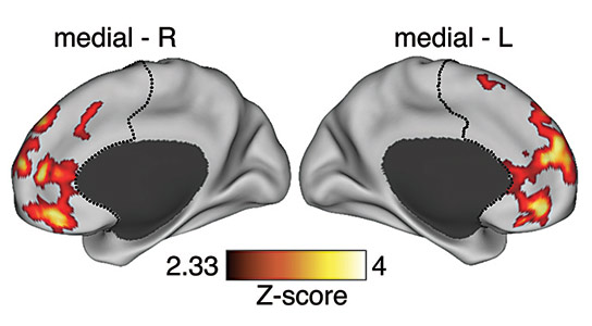 Schizophrenia Onset Linked to Elevated Neural Links