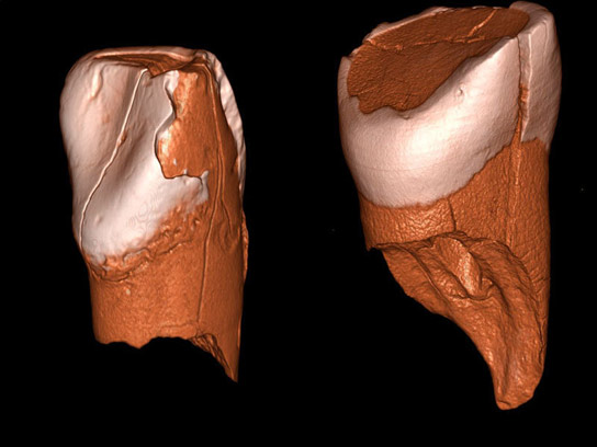 Scientists Decipher the Demise of Neanderthals
