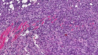 Scientists Narrow In On Immune Response Cancer Cells