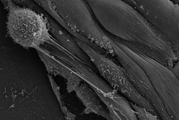 Scientists Reveal How Cancer Cells Escape Blood Vessels