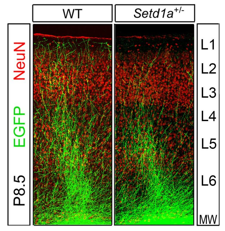 Setd1a Deficiency Disrupts Axonal Growth
