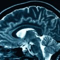 Size Does Matter When Determining Alzheimer's Risk