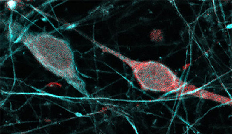Small Differences Among Species Mark Evolution of Human Brain