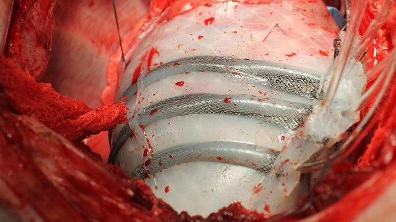 Soft Robotic Sleeve Helps Heart Beat