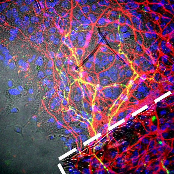Stem Cell Innovation Could Treat Parkinson's