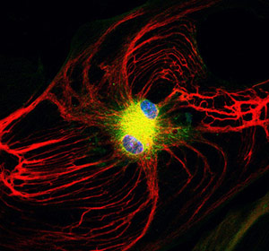 Stem Cell Study Uncovers the Brain Protective Powers of Astrocytes