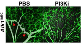 Study Reveals a Possible Treatment for a Rare Vascular Disease