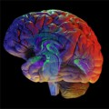 Study Shows that the Brain Rewires Itself after Injury