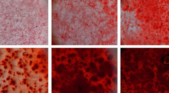Synthetic Silicate Nanoplatelets Stimulate Stem Cells into Bone Cells