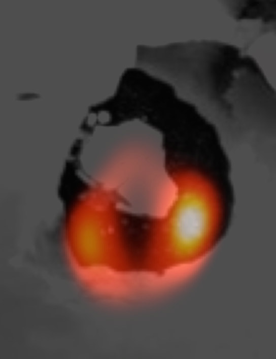 Telescope Shows a Lava Lake on Io