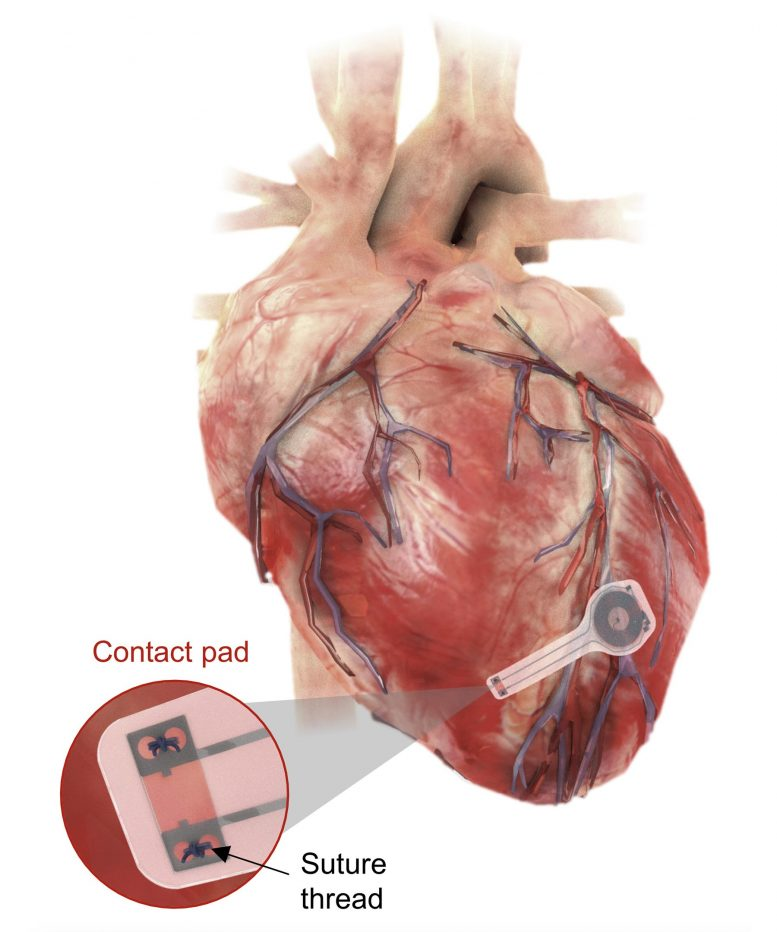 Transient Pacemaker Mounted on Myocardial Tissue