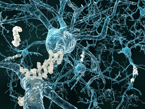 Treatment-to-prevent-Alzheimer's-disease-moves-a-step-closer